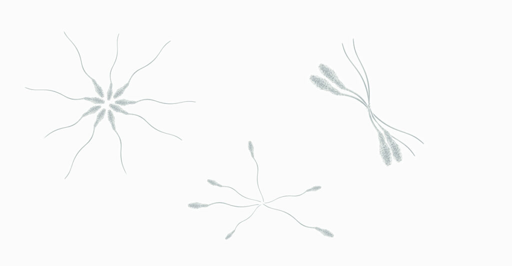 anticorpi anti-spermatozoi Instituto Bernabeu