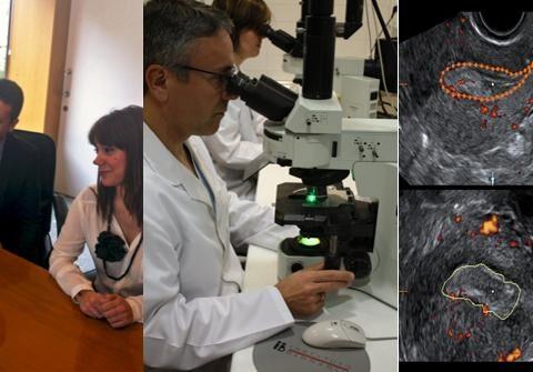 Beiträge des Array-CGH bei der Behandlung von Paaren mit Implantationsfehler (RIF)