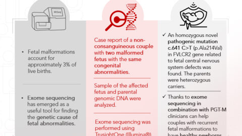 Instituto Bernabeu studies exome sequencing and genetic testing prior to embryo implantation to detect unexplained recurrent foetal malformations