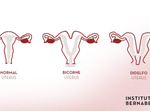 Bicornuate uterus, double uterus or uterus didelphys: what is it? How can it affect fertility and pregnancy?