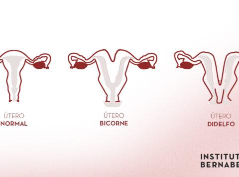 Útero bicorne, doble o didelfo ¿Qué es? ¿Cómo afecta a la fertilidad y al embarazo