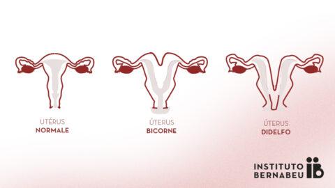 Utérus bicorne, double ou didelphe : Qu'est-ce que c'est ? Comment affecte-t-il la fertilité et la grossesse ?