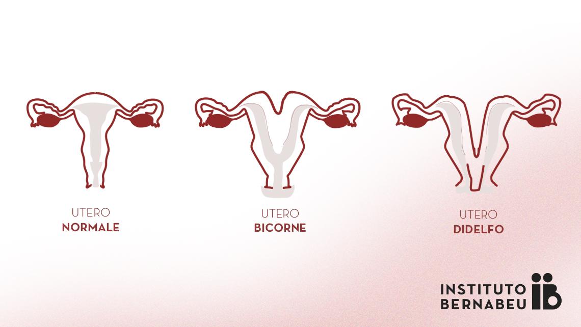 Utero bicorne, doppio o didelfo. Di cosa si tratta? Che effetti ha sulla fertilità o sulla gravidanza