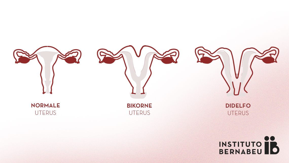 Zweispitzige Gebärmutter, doppelte Gebärmutter oder Uterus didelphys, was ist das? Wie beeinträchtigt sie die Fruchtbarkeit und die Schwangerschaft?