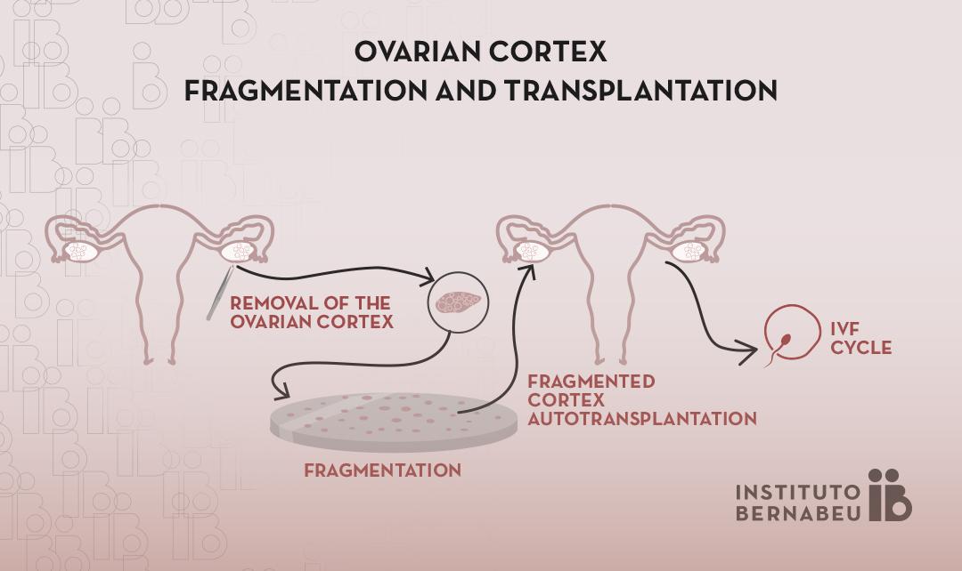 Ovarian rejuvenation through fragmentation and transplantation of ovarian cortex
