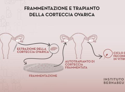 Ringiovanimento ovarico mediante frammentazione e trapianto della corteccia ovarica