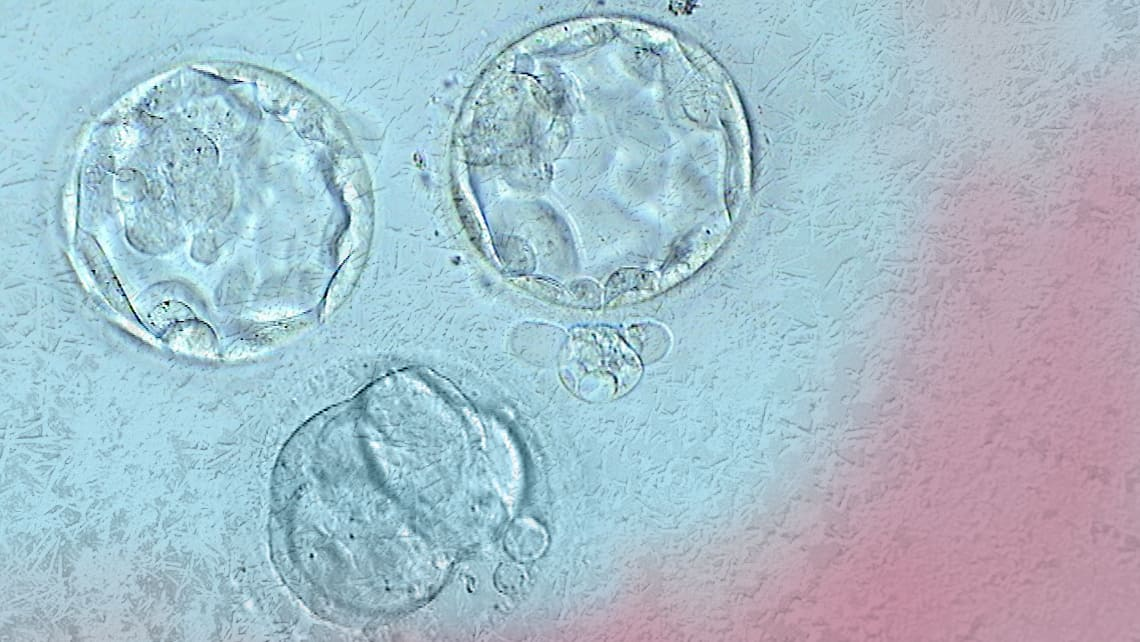 A research presented by Instituto Bernabeu at ESHRE 2021 studies clinical relevance of re-expansion after blastocyst thawing