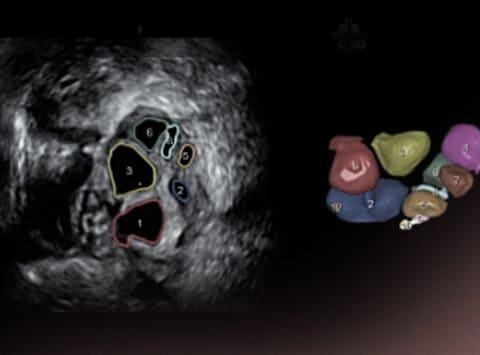 Basal-Ultraschall: Zählung der Antralfollikel zur Bestimmung der ovariellen Reserve